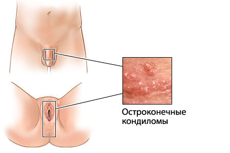 кондиломы и папилломы отличие фото