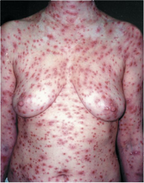 высыпания при вторичном сифилисе