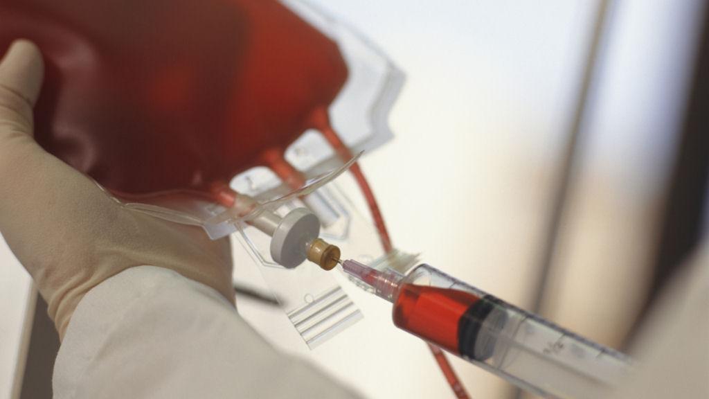 Заражение сифилисом через переливание крови