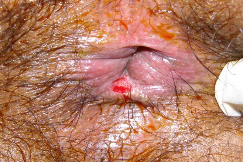 анальный сифилис