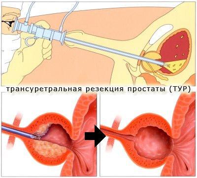Операция для лечения аденомы