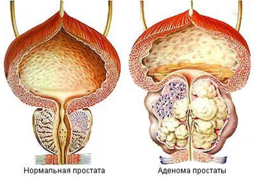 Чем отличается аденома от простатита