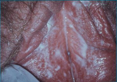 молочница у мужчин симптомы лечение фото отзывы