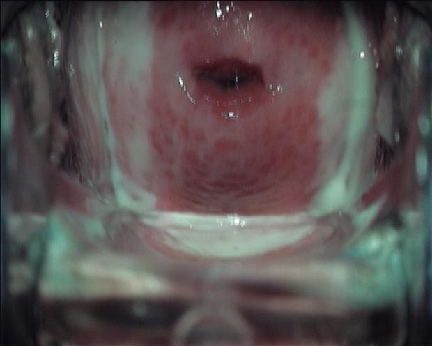 iz-za-prostatita-mozhet-poyavitsya-trihomoniaz