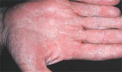 фото грибок на ладонях рук