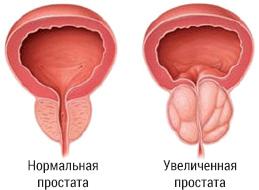 Массажер для лечения простатита
