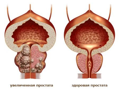 Что представляет собой аденома простаты