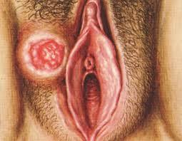 фото шанкр у мужчин фото начальная стадия