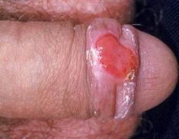 Хламидиоз хламидии симптомы и УСПЕШНОЕ ЛЕЧЕНИЕ у женщин