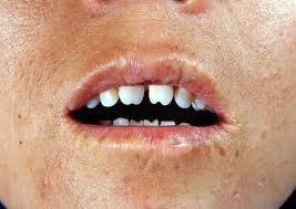 сифилис фото рта